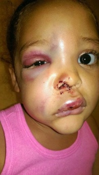 The 5yr old girl that was attacked in school and horrificly injured AvaLynn