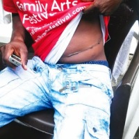 The young man that was tricked to sell his kidney $7,500 (N1.2m)
