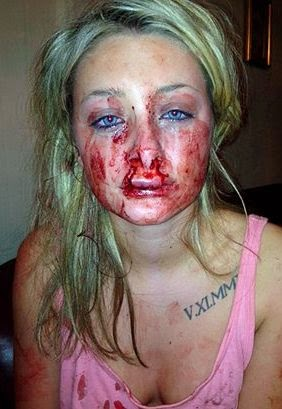 Chantelle Ward said her boyfriend Rhys Culley bite her