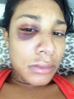 Danii Phae's face battered | ozaragossip